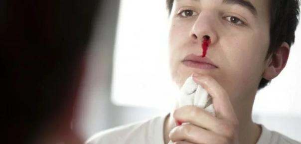 О ЧЁМ МОГУТ ПРЕДУПРЕДИТЬ ЧАСТЫЕ НОСОВЫЕ КРОВОТЕЧЕНИЯ К медикам за помощью часто обращаются пациенты с жалобами на кровотечение из носа. Иногда такое явление может быть связано со слабостью