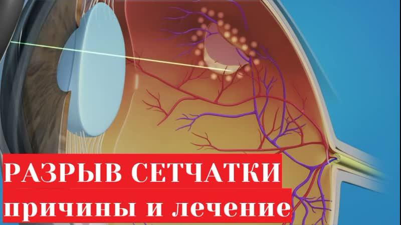 Разрыв сетчатки глаза причины и лечение лазерная операция