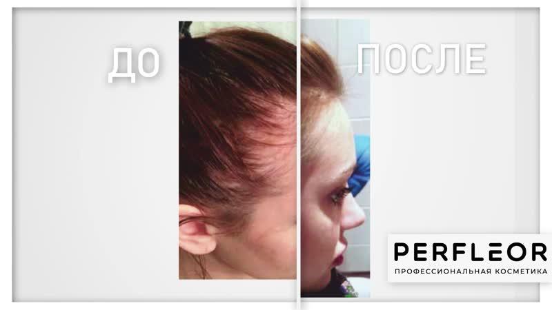 PERFLEOR - ДО и ПОСЛЕ применения Кислородной эмульсии против выпадения и для роста волос