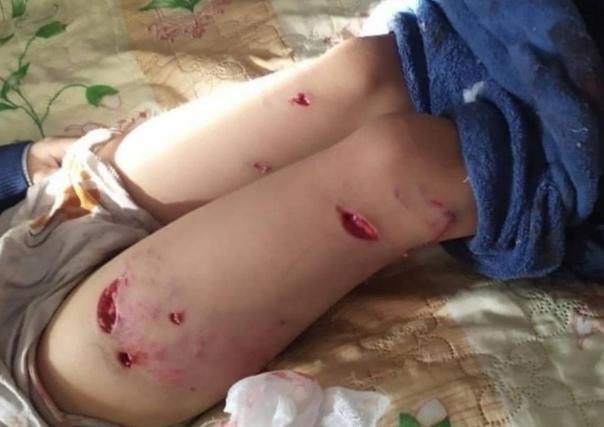 В Улан-Удэ стая собак напала на первоклассника Малыш возвращался домой после учёбы и никак не провоцировал животных.Ребёнка сильно покусали, у него буквально вырваны куски тела, а также сломана