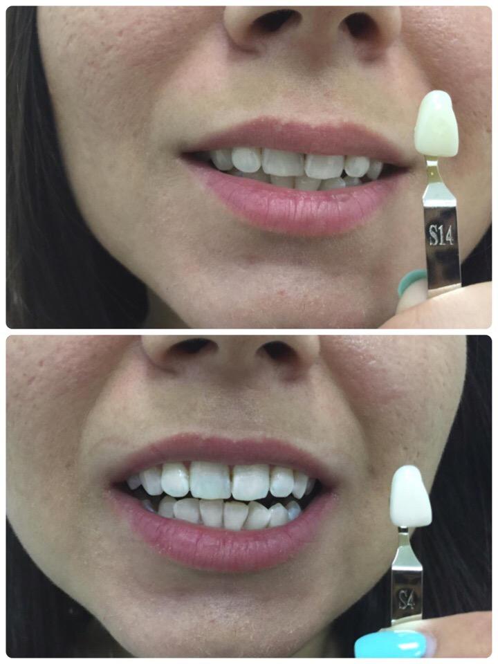 Ищем моделей на отбеливание зубов, оплата только за расходные материалы!