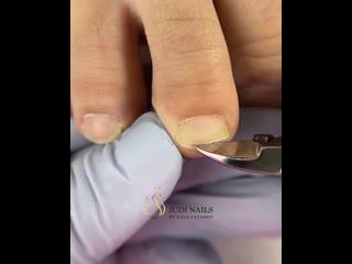 Как правильно убрать длину свободного края на ногах