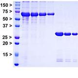 Электрофорез белков в денатурирующих условиях (SDS-PAGE)