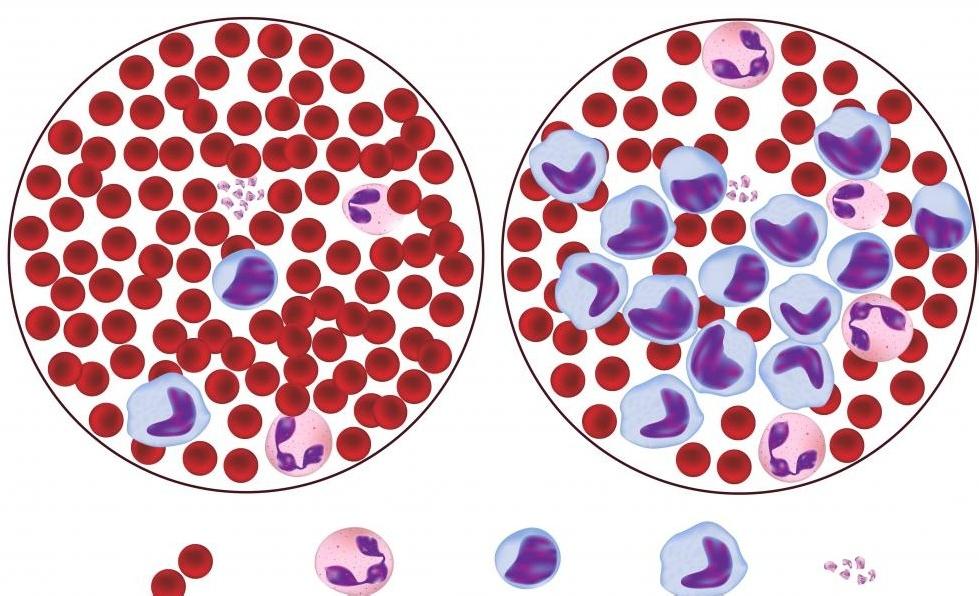 Образцы крови от здорового человека и от лейкемии, типа рака крови.