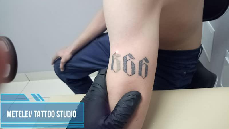 Лазерное удаление татуировки в Нижнем Тагиле 18.05.19