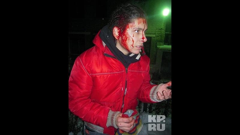 Лукашенко пролил первую кровь. Искалеченных задержанных из автозаков выносили прямо в скорые